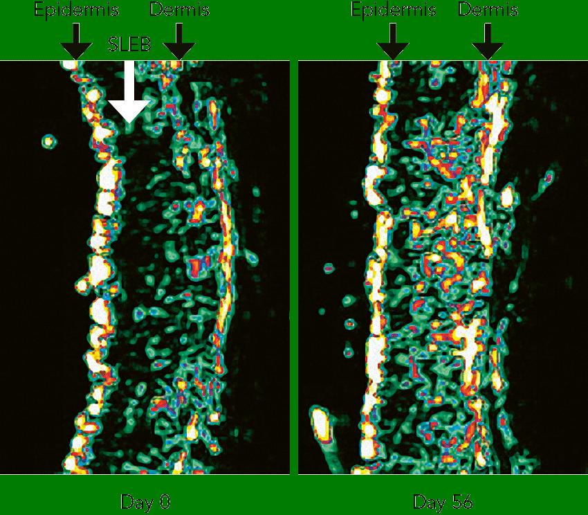 PhytoCellTec™ Argan Figure 4